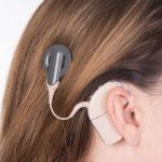 Cochlea Implantat